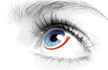 Glaucoma / Canaloplasty