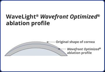 wavelight ex500